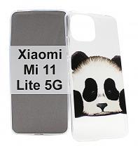 TPU Designcover Xiaomi Mi 11 Lite / Mi 11 Lite 5G